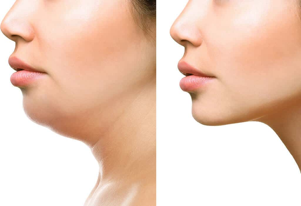 Effects of Losing Weight in your Face